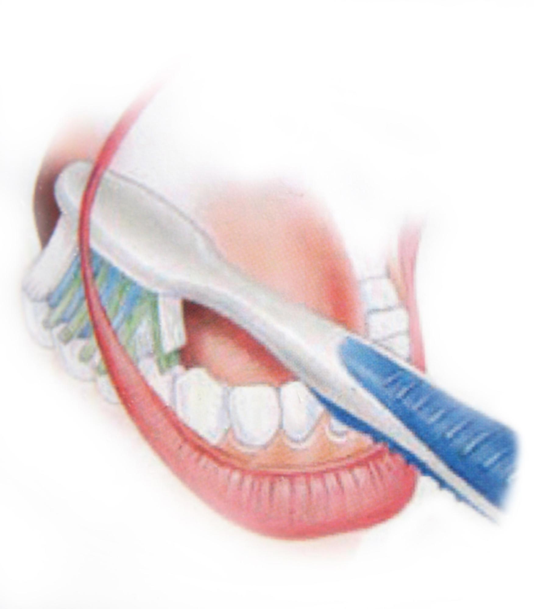 pranje zuba9
